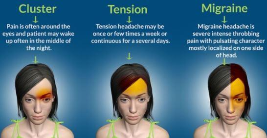 Ocular Migraine Pathophysiology