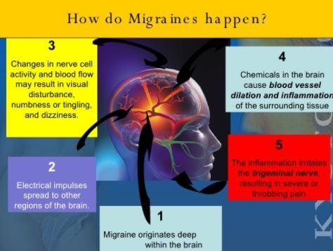 Ocular Migraine Symptoms
